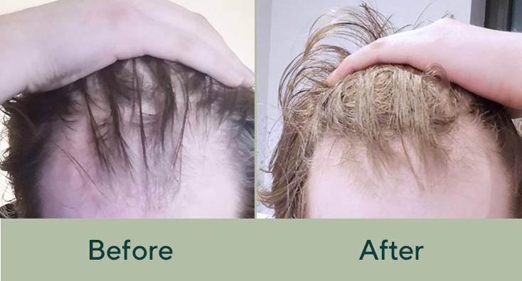 Success Story Leo S Hair Regrowth Manual